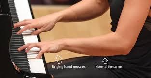 arm-position